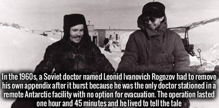 Dr. Leonid Ivanovich Rogozov- A Russian removed his own appendix