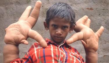 kaleem gigantic hands