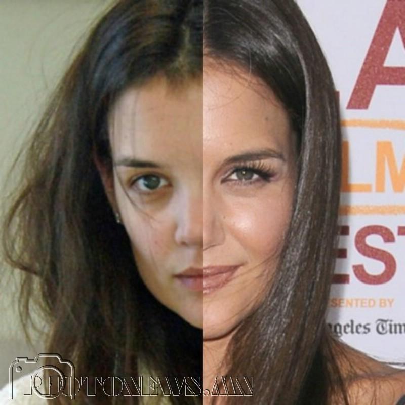 Facial skin cancer surgery