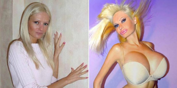 plastic surgery, cosmetic surgery, fake boobs, fake butt, human doll, barbie human, beauty, shocking images, three breast woman, women with 3 boobs