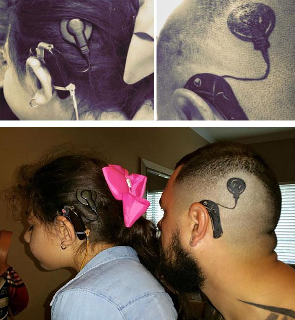 dad copied daughters implant
