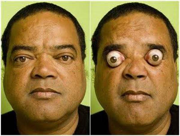 eye popping man