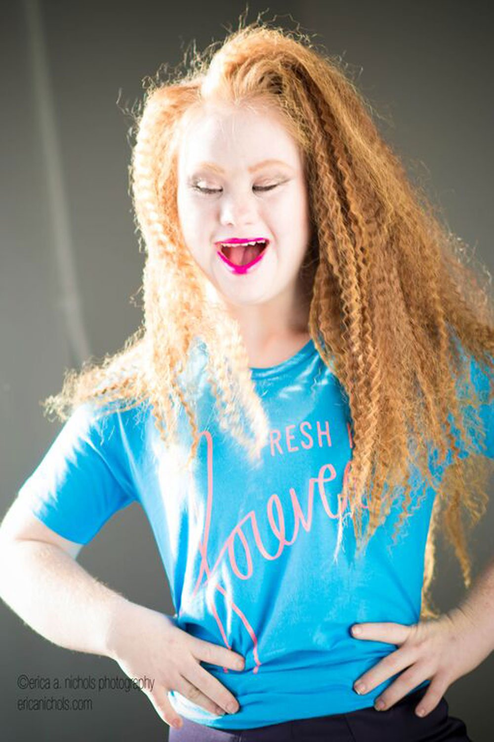 18 Year Old Model With Down Syndrome Will Walk At New York