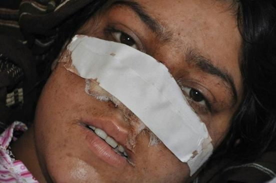 nose cut women 3