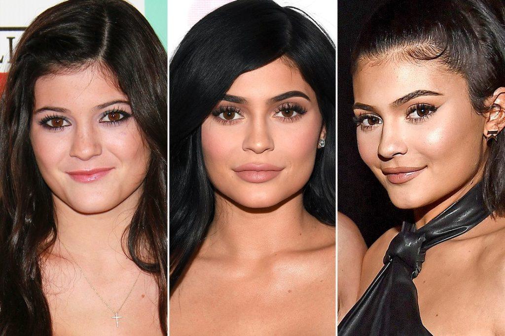Hot Billionaire Kylie Genre Has Gone Through Lip Plastic